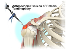 Calcific Tendinopathy